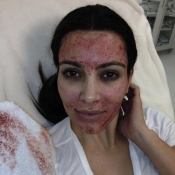 Vampire facelift, Kim Kardashian's bloody beauty treatment